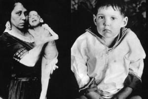 Leonard Thompson (1908–1935) a kezelés előtt és után